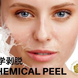 [1AESTHETICS, MEDICAL & SURGERY] What is Chemical Peeling?Chemical peeling is a skin treatment that rejuvenates the skin by removing the top layers of