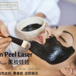 [1AESTHETICS, MEDICAL & SURGERY] What is Carbon Laser Peel?The Carbon Laser Peel treatment is a laser procedure that uses a carbon layer as