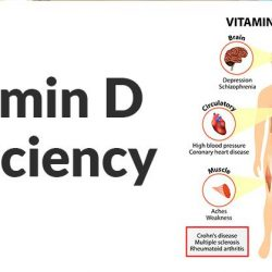 "[Etern Medical Clinic] Optimal level of vitD: ""The most important factor is having your vitamin D serum leve ltested every six months, as"