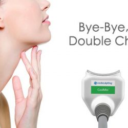 [Ageless Aesthetic Medical Centre] Be confident at every angle - Freeze away your DoubleChin with the No.