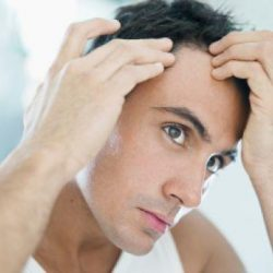 [Oriental Hair Solution] According to the American Academy of Dermatology, two out of three men develop some form of balding during their lifetimes.