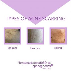 [GANGNAM LASER CLINIC] Acne scars can be a real confidence downer.