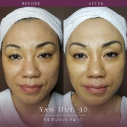[d'skin] Look younger than your age with our VS Freeze PMET Treatment!