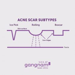 [GANGNAM LASER CLINIC] Facial craters, discolored spots, and atrophic scars can dim one's confidence but you don't have to grin and