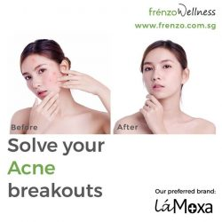 [Frenzo Spa & Wellness] Face full of acne?