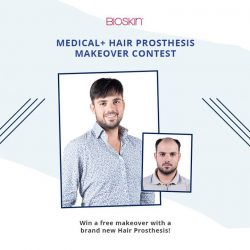 [Bioskin/AbsTrim] Here's your chance to walk away with a free Hair Prosthesis!