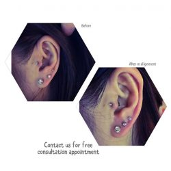 [Piercing Clinic] Piercing position affecting your earring ?