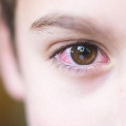 [Vision Lab] Do you know: Pinkeye is also called as conjunctivitis is redness and swelling of the conjunctiva.