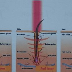 [Organic Hair Professional] How does it Laser Infrared Regrowth Treatment work?